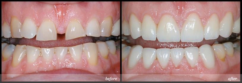 kinh nghiệm niềng răng thưa 3