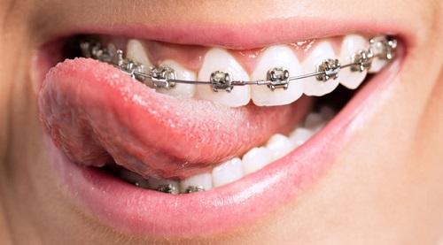 những điều cần biết khi niềng răng