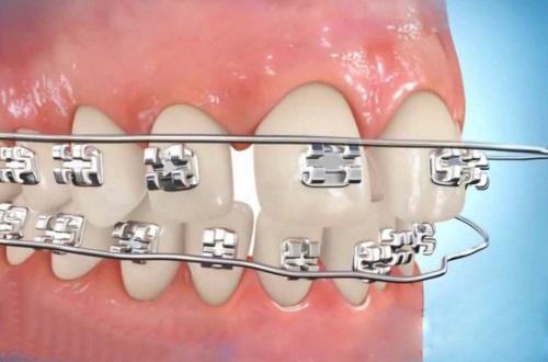 những điều cần biết khi niềng răng 5