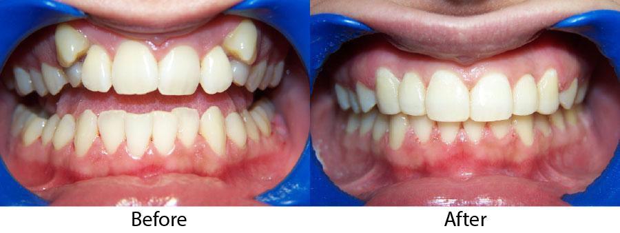 niềng răng sứ giá bao nhiêu 4