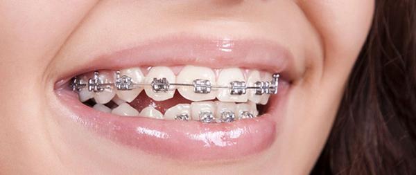 niềng răng có đau không 2