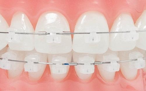 niềng răng giá bao nhiêu 3
