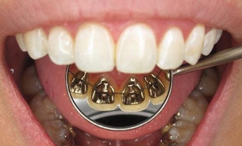 niềng răng giá bao nhiêu 4