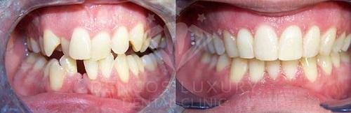 niềng răng mắc cài pha lê 11