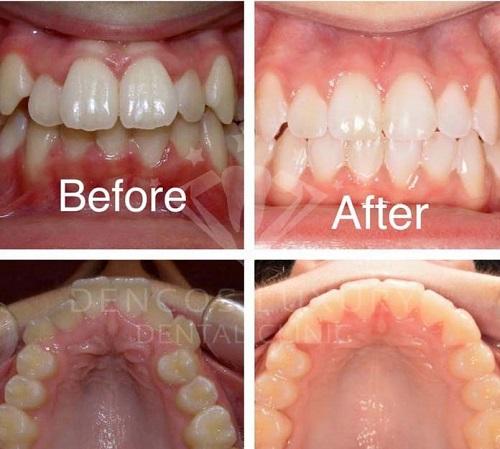 niềng răng mắc cài pha lê 12