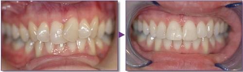niềng răng mắc cài pha lê 9