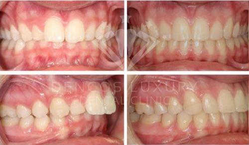 niềng răng mắc cài sứ 12