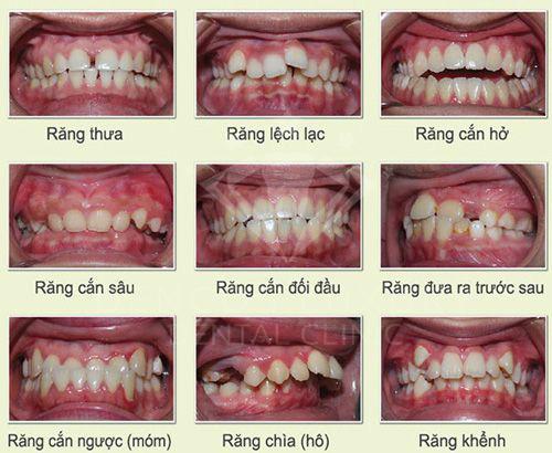 niềng răng mắc cài sứ 2