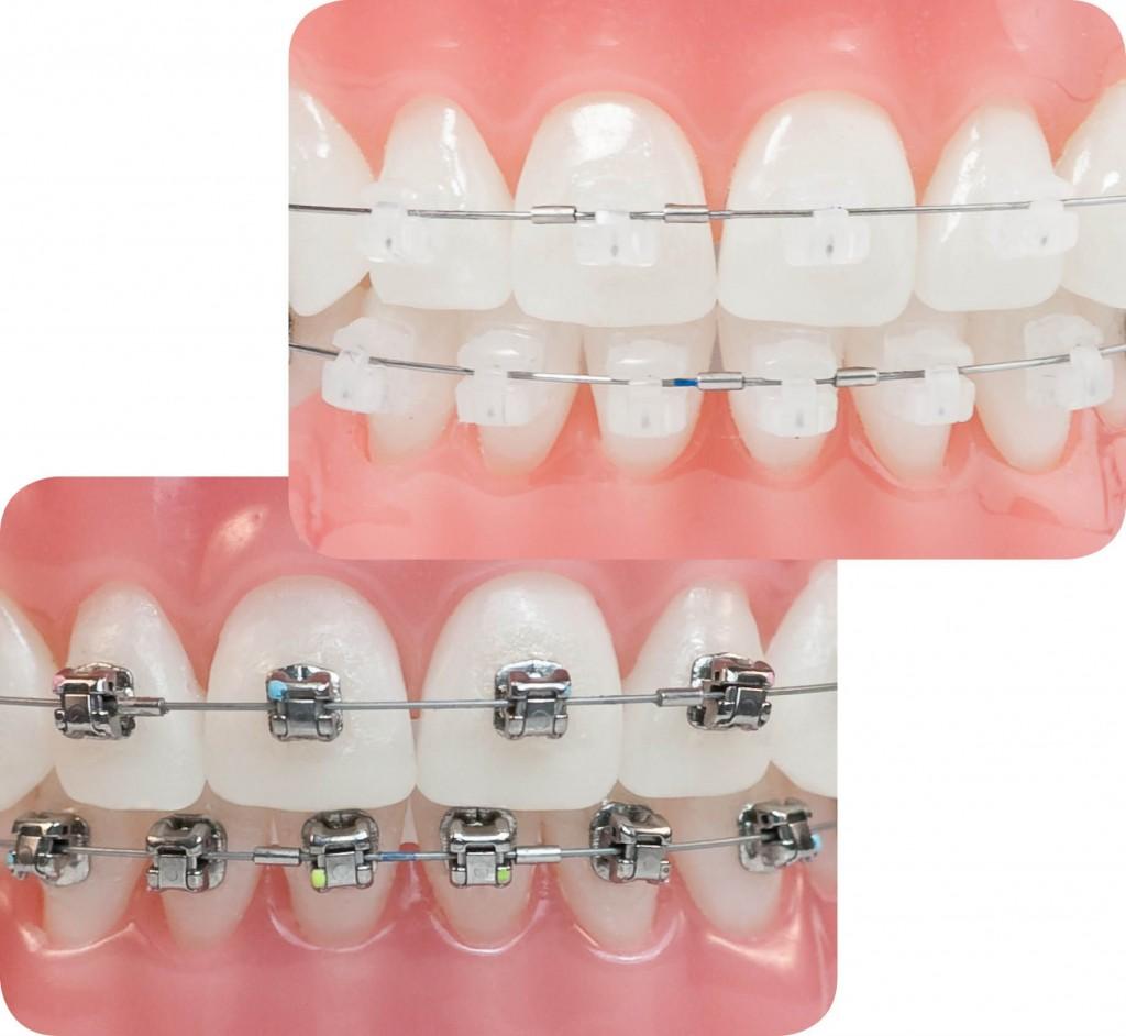 niềng răng sứ giá bao nhiêu 2
