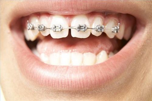 niềng răng thưa có đau không ?