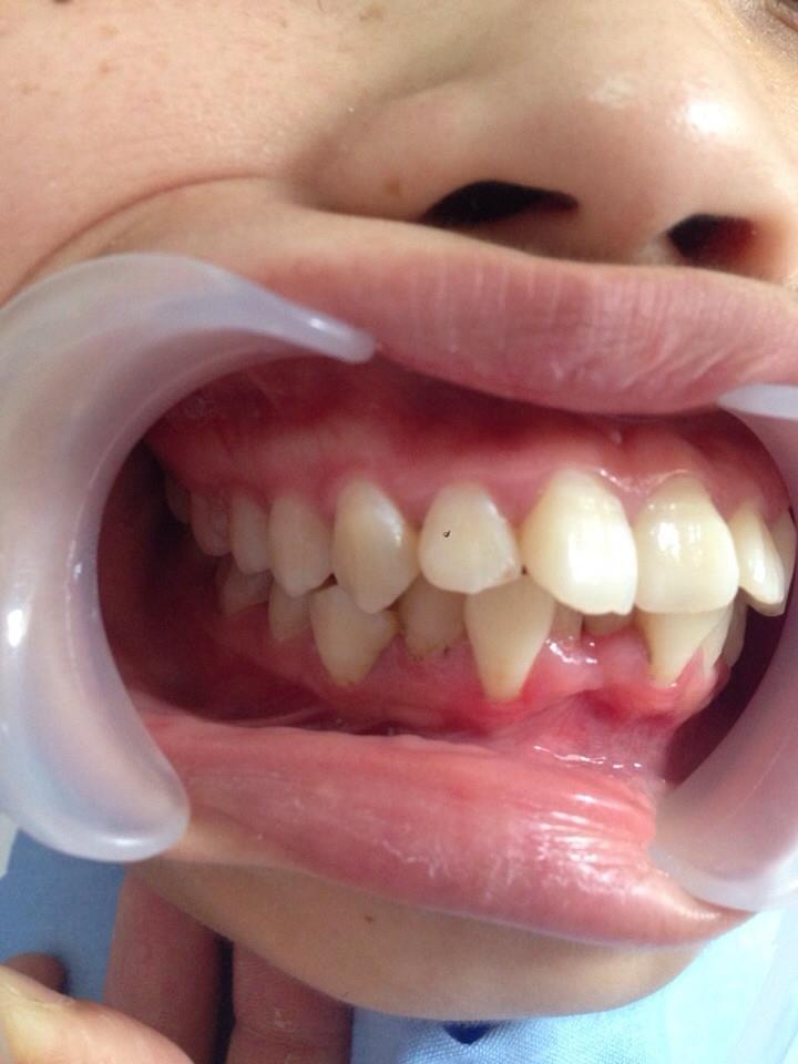 niềng răng bị lệch