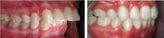 nha khoa niềng răng hiệu quả 2