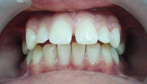 chỉnh răng thưa 2
