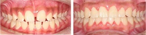 chỉnh răng thưa 4