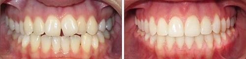 chỉnh răng thưa 5