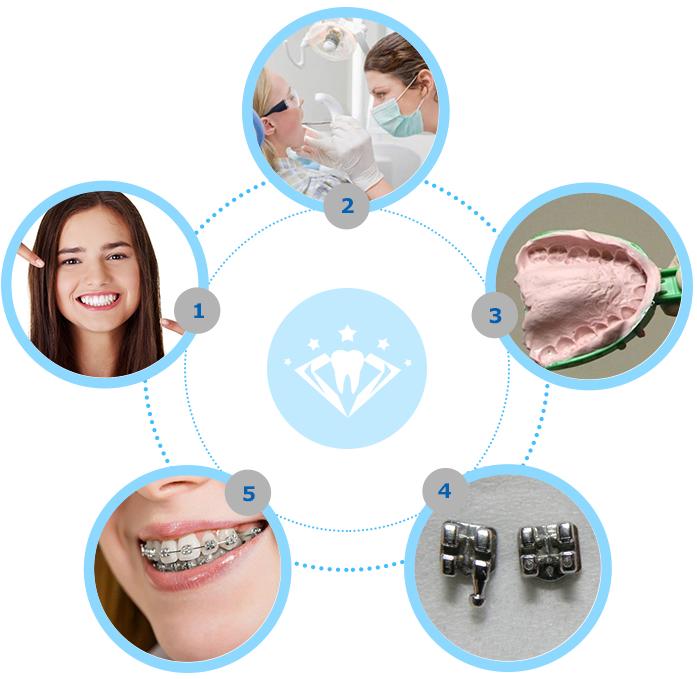 dịch vụ niềng răng mắc cài 1