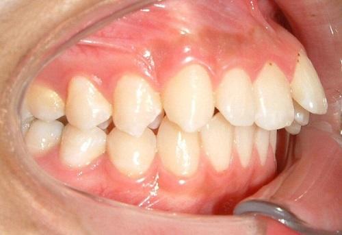 phẫu thuật hàm hô hay niềng răng
