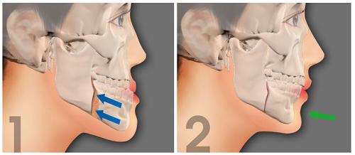 phẫu thuật hàm hô hay niềng răng 4