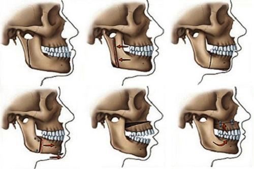 răng hô là gì 3