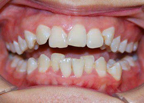 răng mọc sai vị trí
