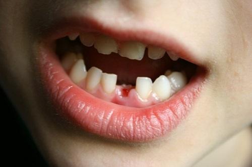 răng mọc sai vị trí 2