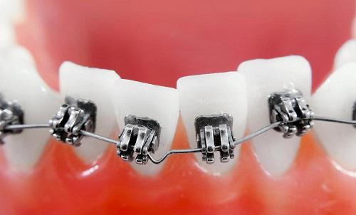 răng mọc sai vị trí 4