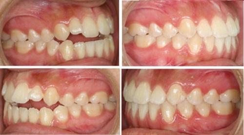 niềng răng hô có ảnh hưởng gì không 2