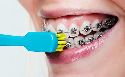 bị tuột mắc cài trong khi niềng răng 2