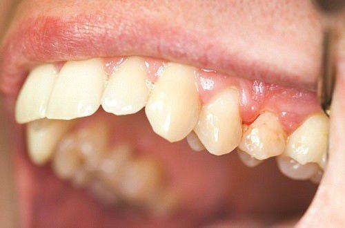 cách làm răng đều đẹp