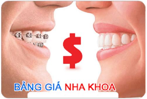 chi phí làm nẹp răng