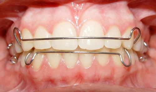 đeo hàm duy trì sau niềng răng 3