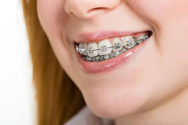 hô hàm có niềng răng được không 1