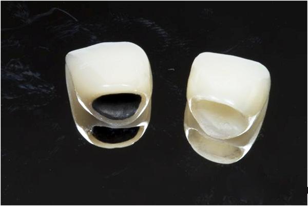 Làm sao để răng hết hô 3