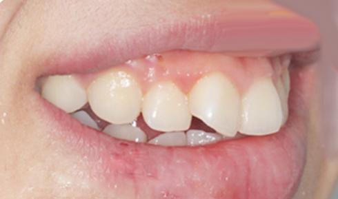 mẹo chữa răng hô