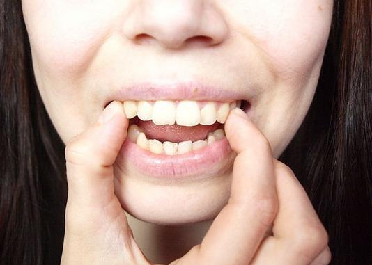mẹo chữa răng hô 2