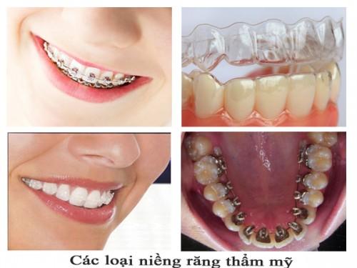 nẹp răng có hại không 3