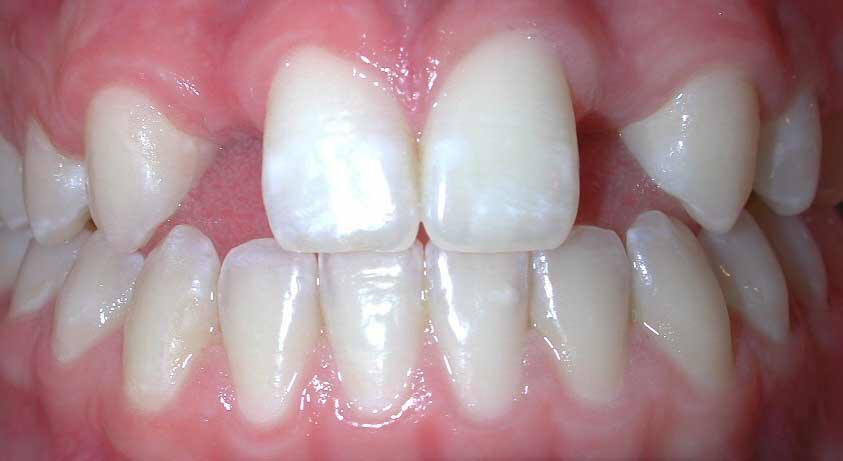 răng thưa và cách khắc phục 1