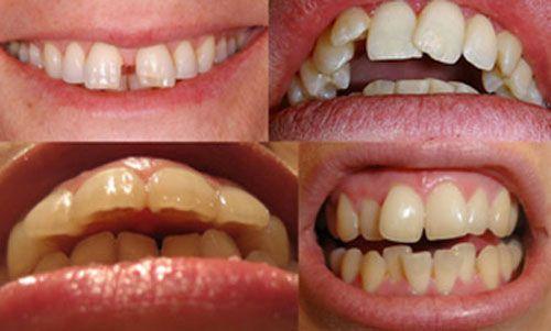 niềng răng bằng mắc cài