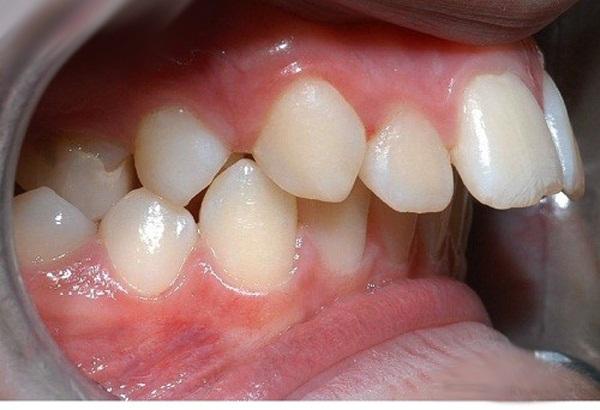 niềng răng có hết hô không 3