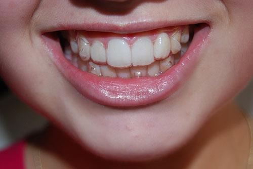 niềng răng có hết hô không 4