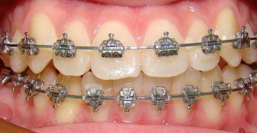 Niềng răng giá rẻ nhất bao nhiêu?