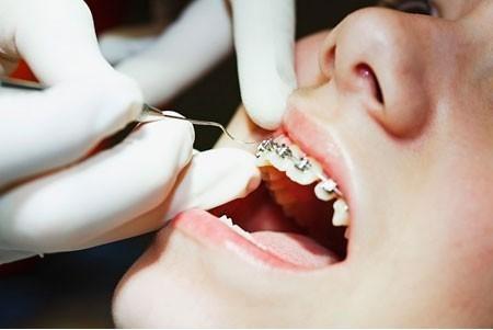 niềng răng hô có cần nhổ răng không 3