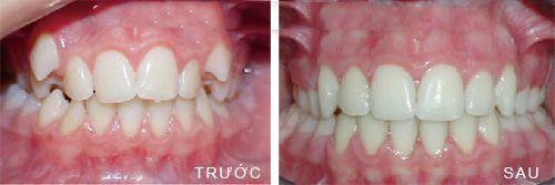 niềng răng khểnh 5