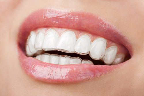 niềng răng trong suốt giá bao nhiêu 3