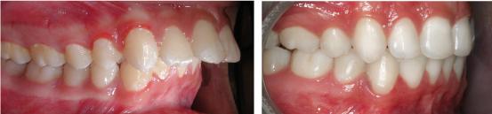 răng cửa bị vổ 2