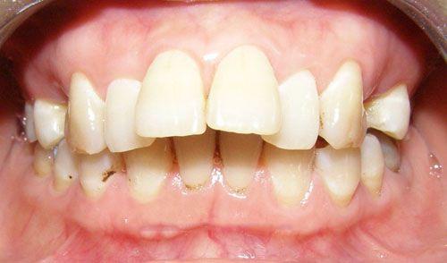 răng cửa bị vổ