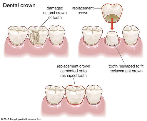 răng cửa bị vổ 4