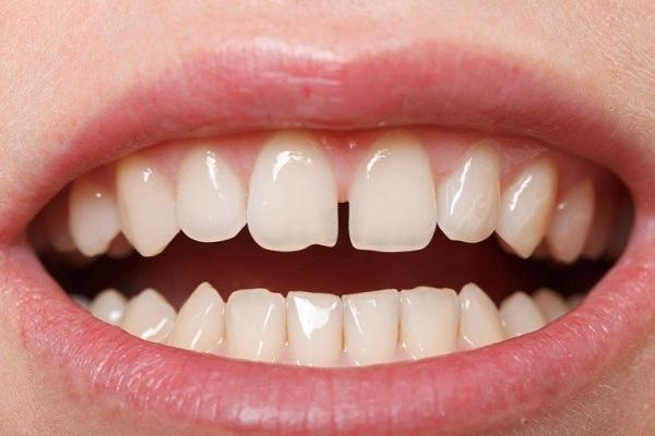 răng thưa phải làm sao