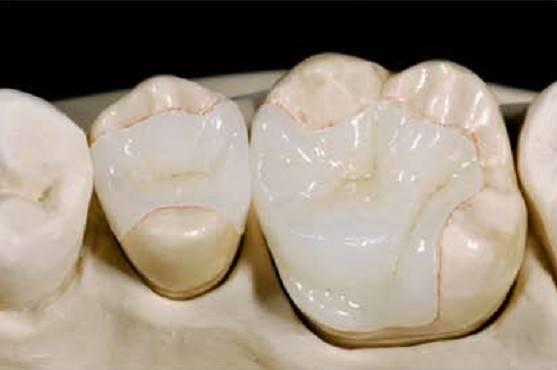 răng thưa phải làm sao 1