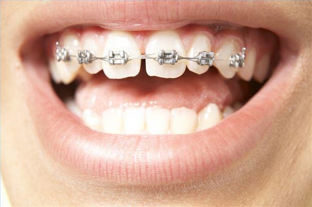 dịch vụ niềng răng mắc cài
